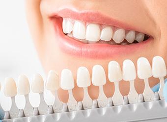 町屋メディウム歯科 審美治療