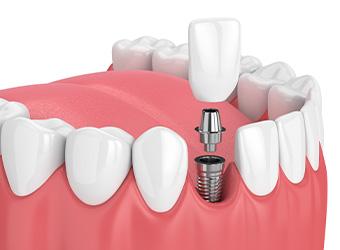 町屋メディウム歯科 インプラント