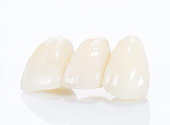 町屋メディウム歯科 ブリッジの特徴
